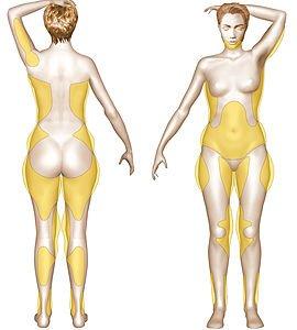 La liposuccion