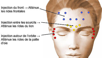 Injections de Toxine Botulique