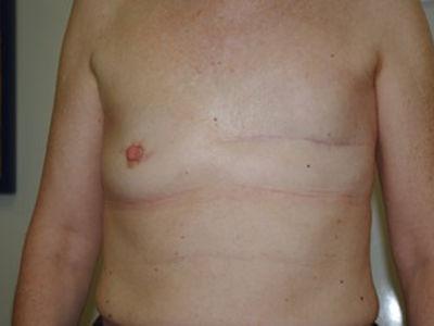 La reconstruction mammaire par lambeau